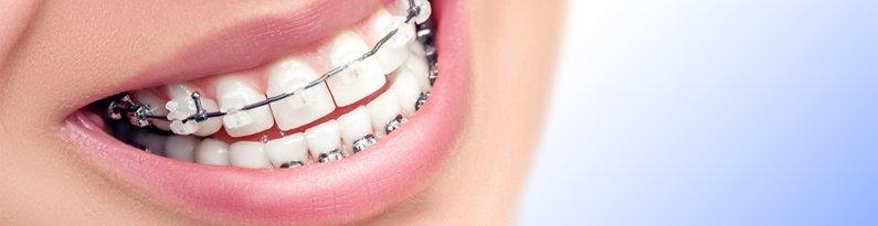 Aparelho Ortodondico