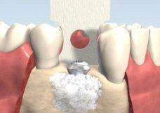 Enxerto osseo - Implantes Dentários