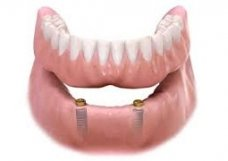 Implante Overdenture - Implantes Dentários