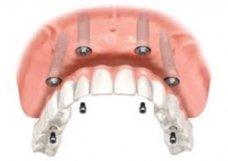 Implante Protocolo - Implantes Dentários