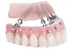 Implante de Carga Imediata - Implantes Dentários