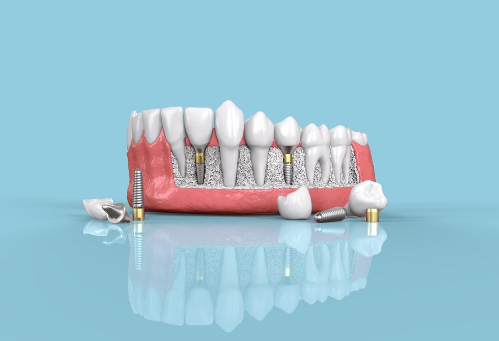 Quais são os tipos de implante dentário disponíveis?