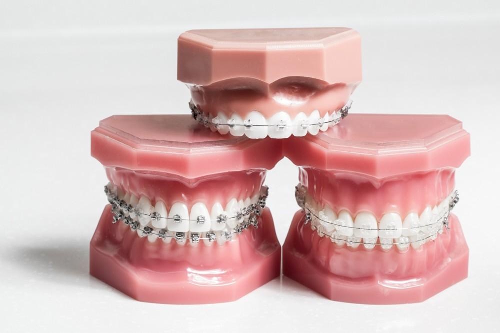 aparelho ortodontico  - Aparelho Ortodôntico