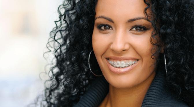 Quanto custa colocar aparelho dentário