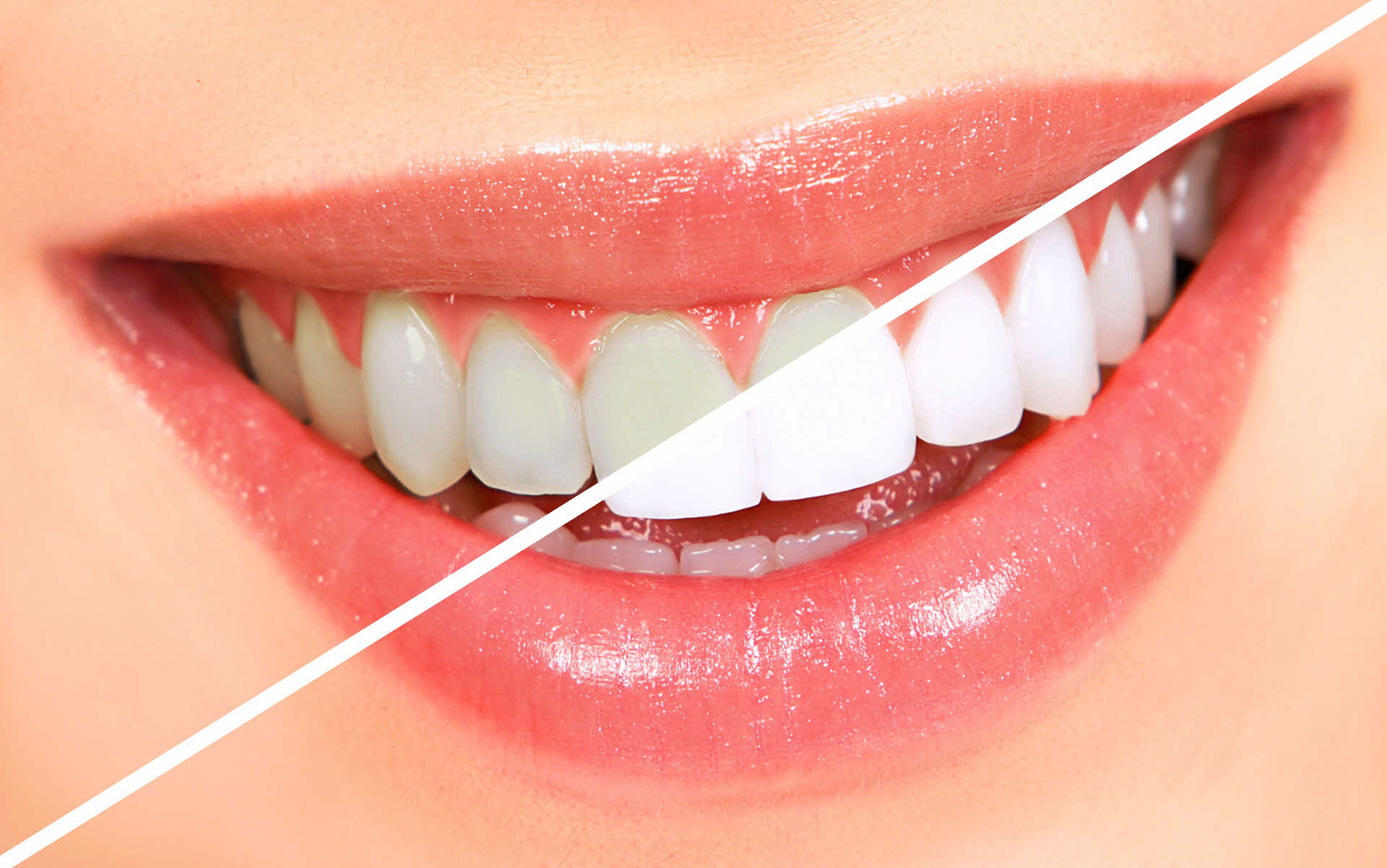 clareamento dental - Quanto custa um clareamento dental?